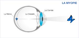 d0ab3d8b0cce24 Oeil myope - Symptôme correction opération de la myopie   New Vision