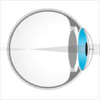 2f0df372d475f8 PKR - Opération de chirurgie refractive pour corriger la myopie