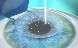 LASIK 100% Laser